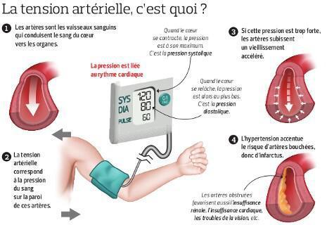Tension artérielle : le grand révélateur - SFR Presse